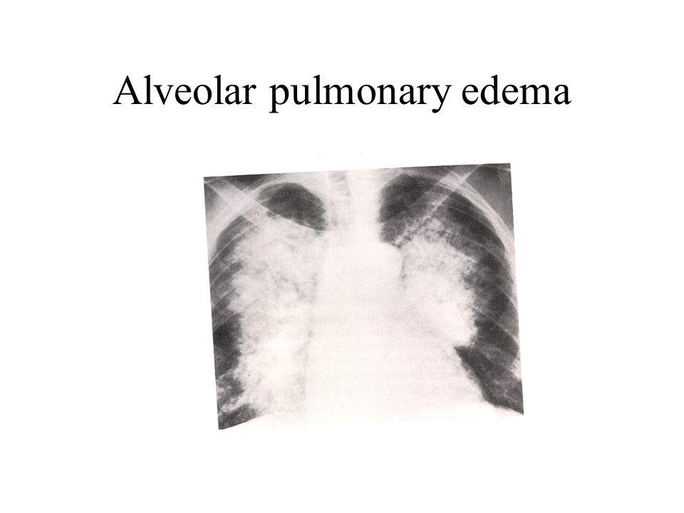 Alveolar pulmonary edema