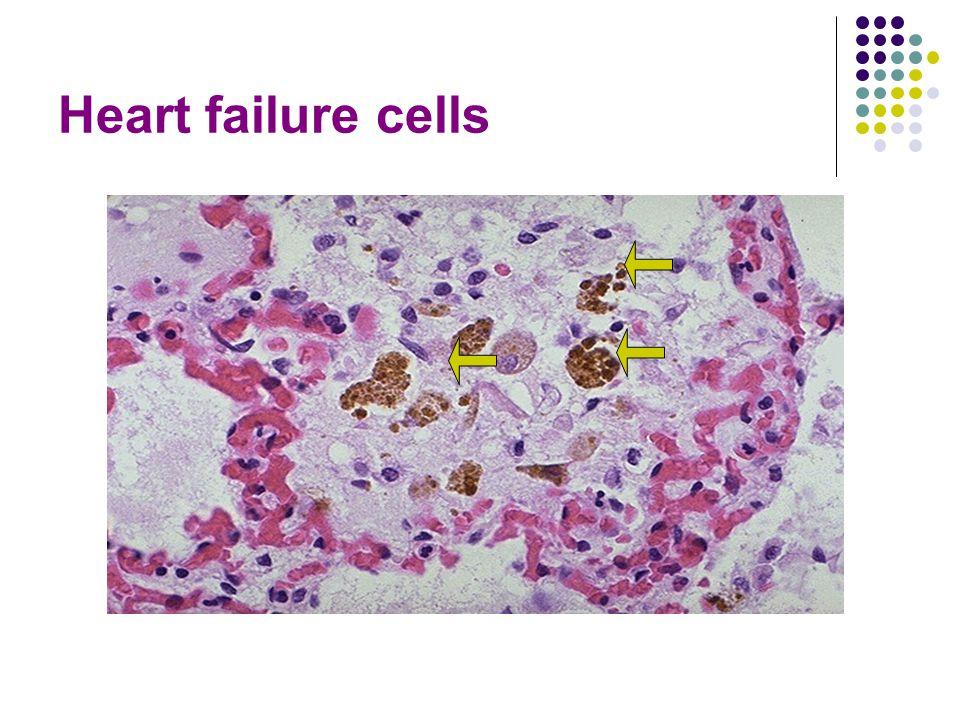 Heart failure cells
