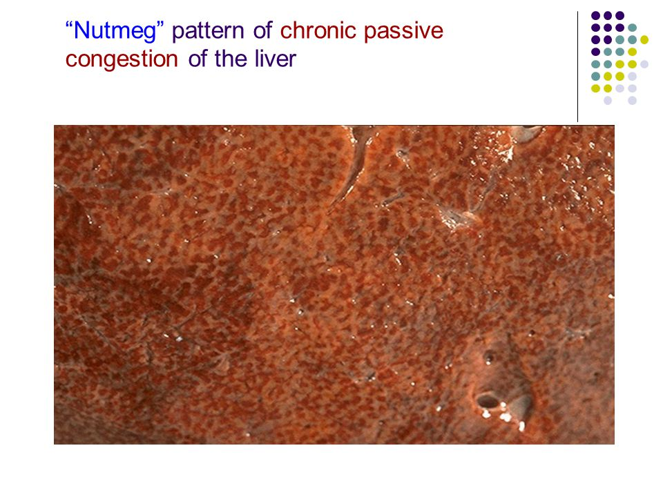 Nutmeg pattern of chronic passive congestion of the liver