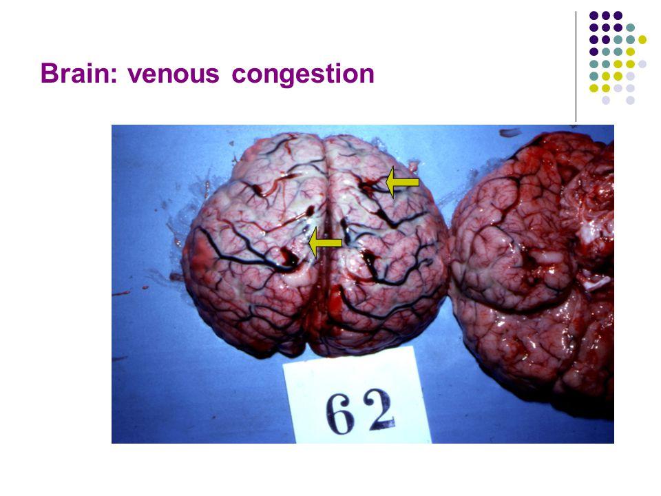 Brain: venous congestion