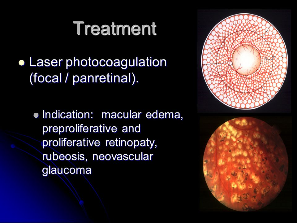 Treatment Laser photocoagulation (focal / panretinal).