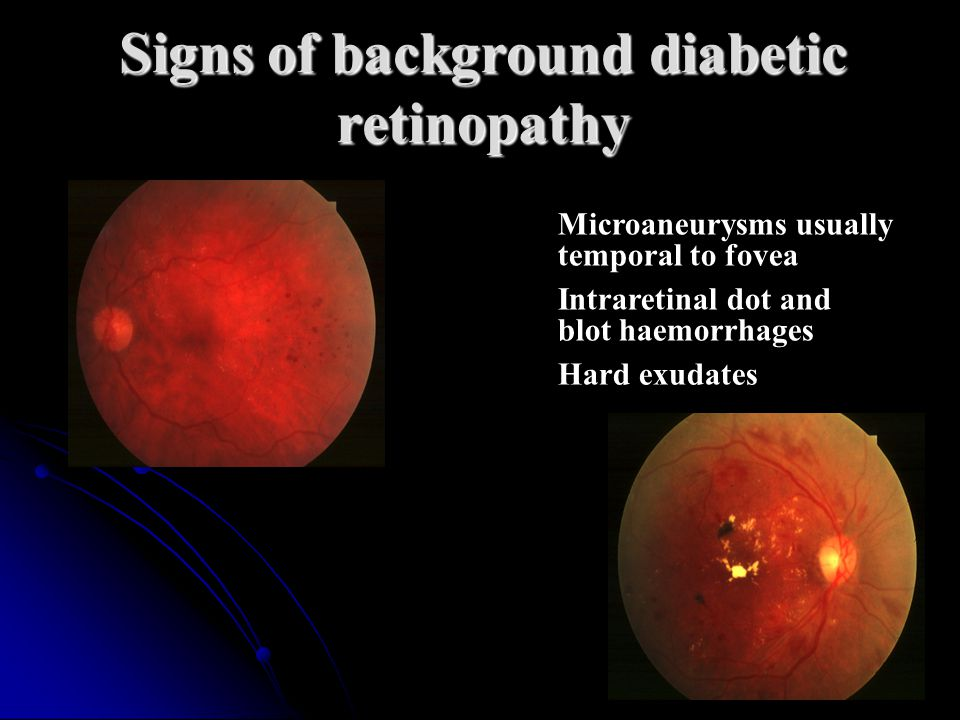 Signs of background diabetic retinopathy