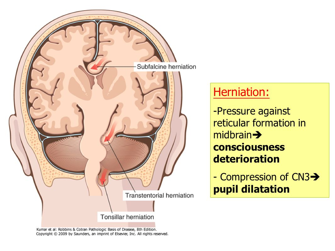 Herniation: Pressure against reticular formation in midbrain consciousness deterioration.