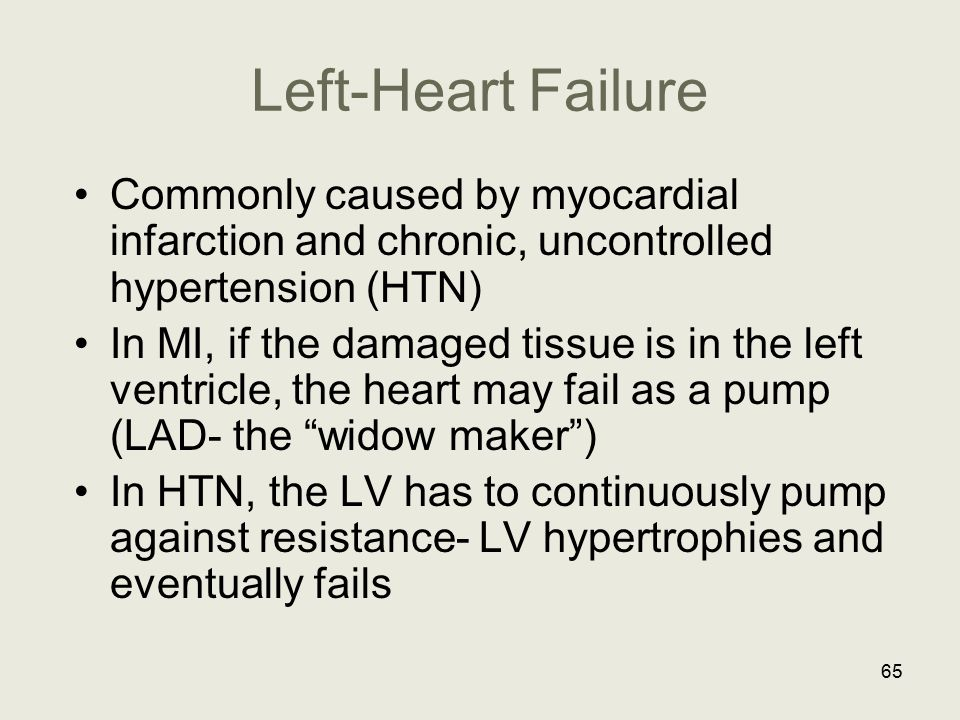 Left-Heart Failure Commonly caused by myocardial infarction and chronic, uncontrolled hypertension (HTN)