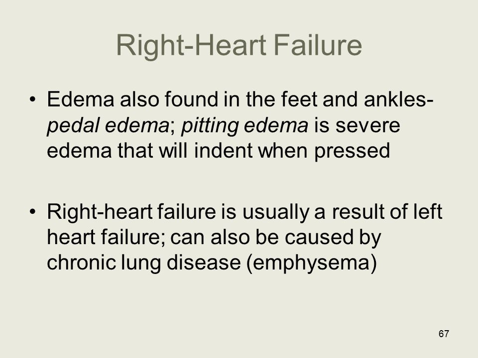 Right-Heart Failure Edema also found in the feet and ankles- pedal edema; pitting edema is severe edema that will indent when pressed.