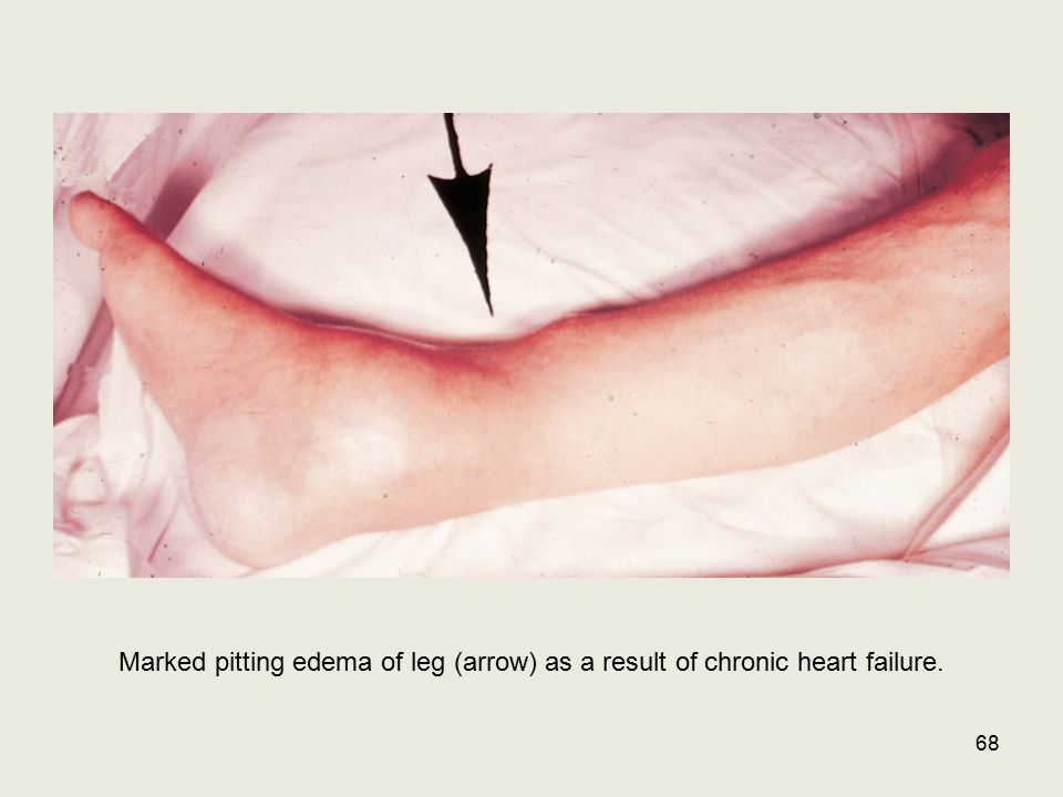 From Crowley Marked pitting edema of leg (arrow) as a result of chronic heart failure.