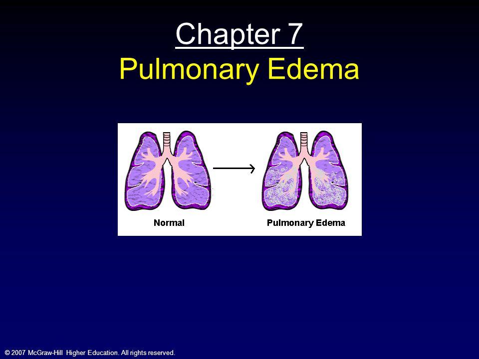 Chapter 7 Pulmonary Edema