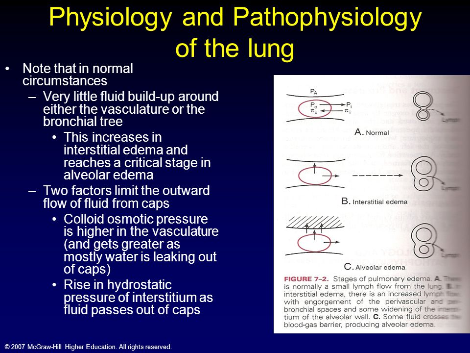 Physiology and Pathophysiology of the lung