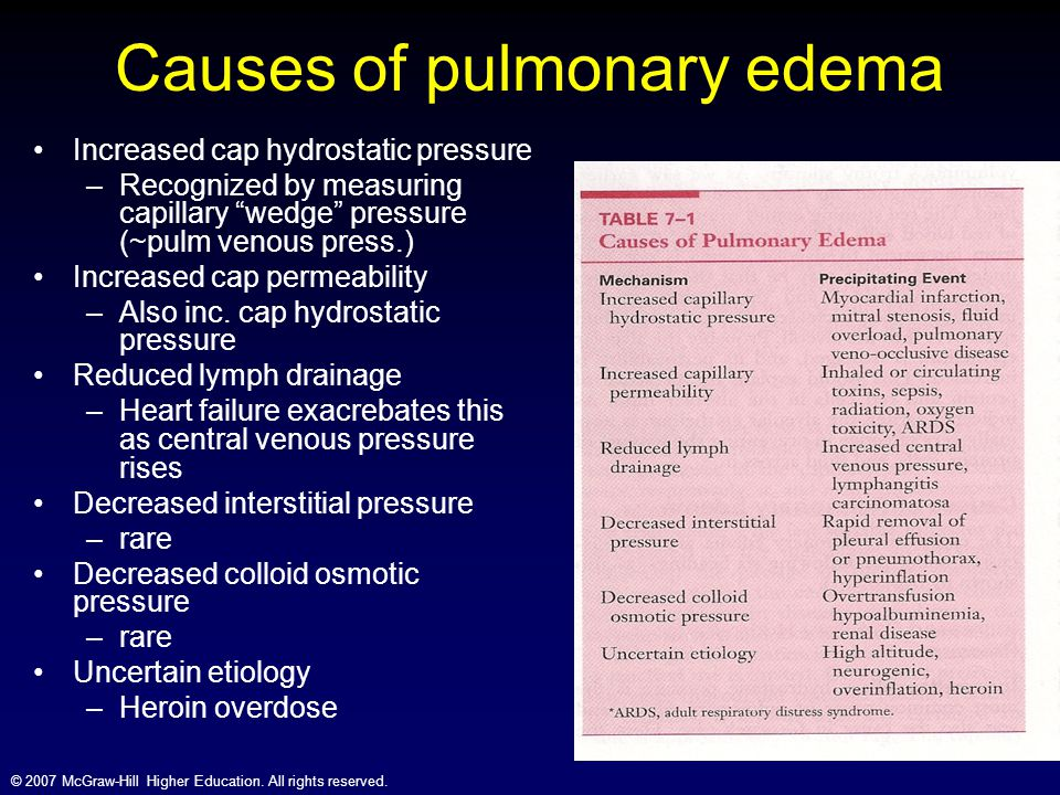 Causes of pulmonary edema