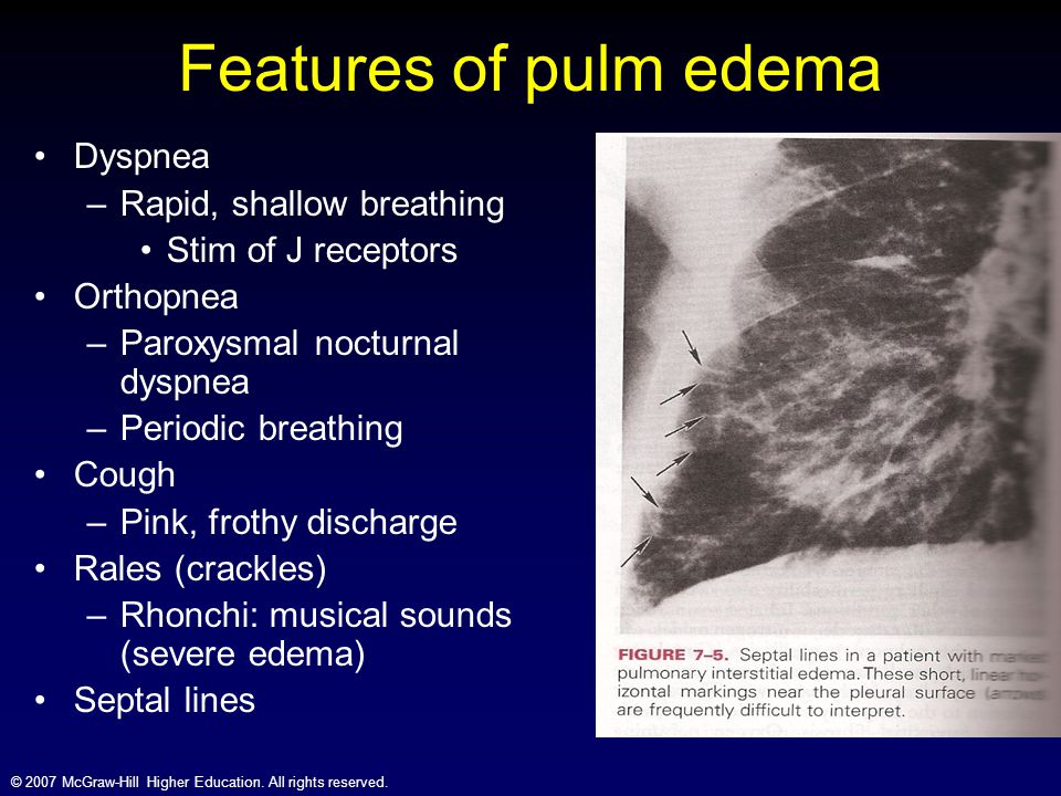 Features of pulm edema Dyspnea Rapid, shallow breathing