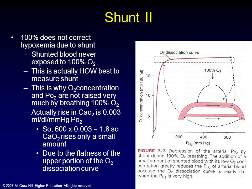 Shunt II 100% does not correct hypoxemia due to shunt