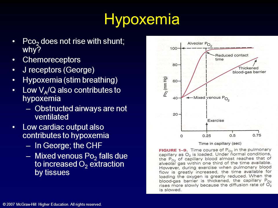 Hypoxemia Pco2 does not rise with shunt; why Chemoreceptors