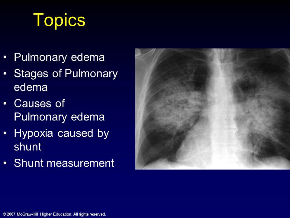 Topics Pulmonary edema Stages of Pulmonary edema