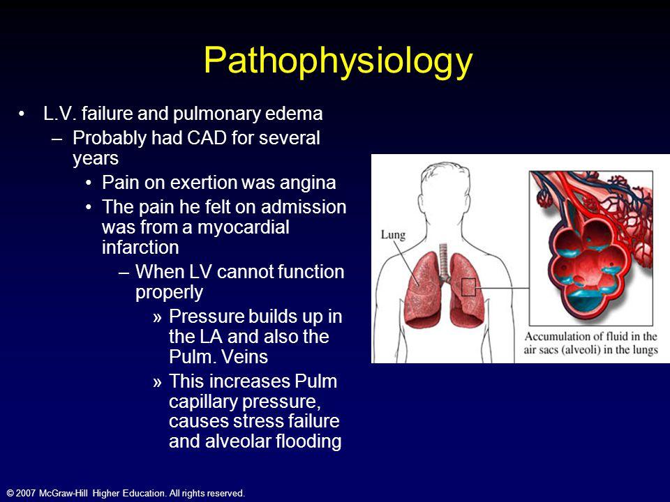 Pathophysiology L.V. failure and pulmonary edema