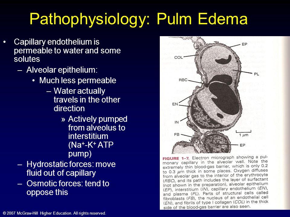 Pathophysiology: Pulm Edema