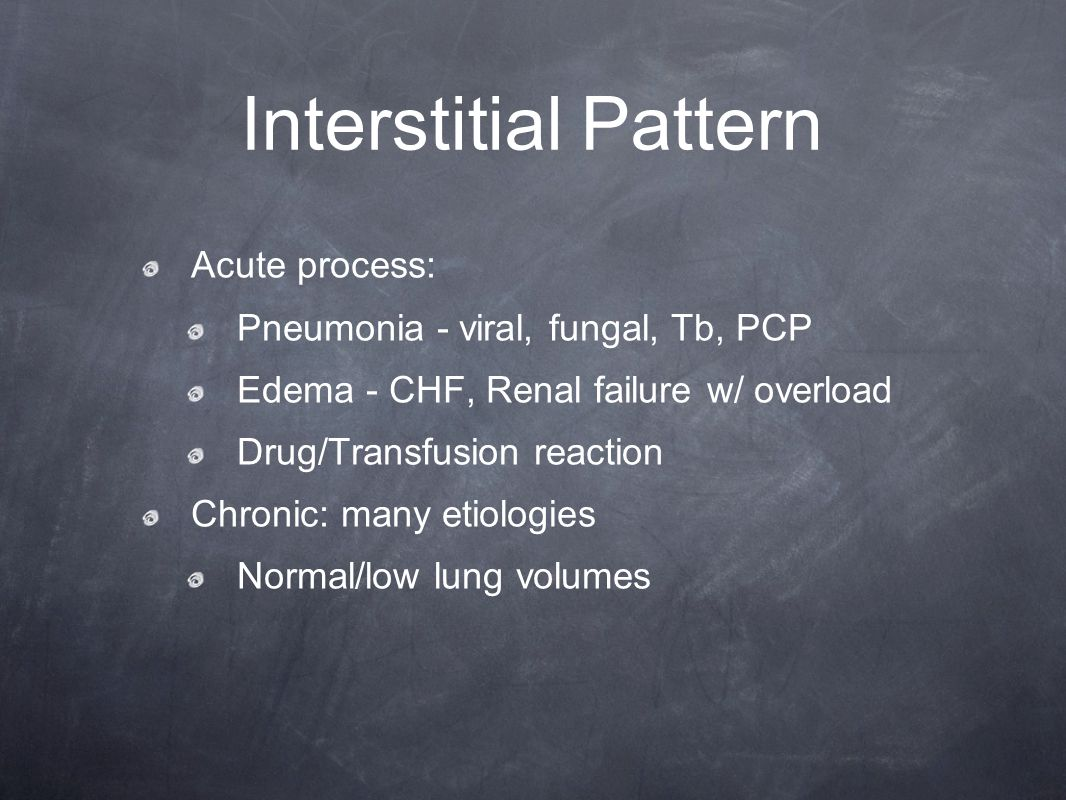 Interstitial Pattern Acute process: Pneumonia - viral, fungal, Tb, PCP