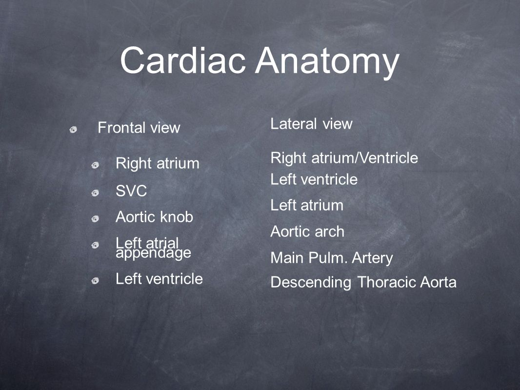 Cardiac Anatomy Frontal view Right atrium SVC Aortic knob