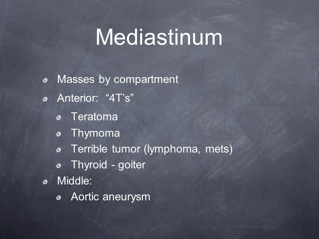 Mediastinum Masses by compartment Anterior: 4T's Teratoma Thymoma