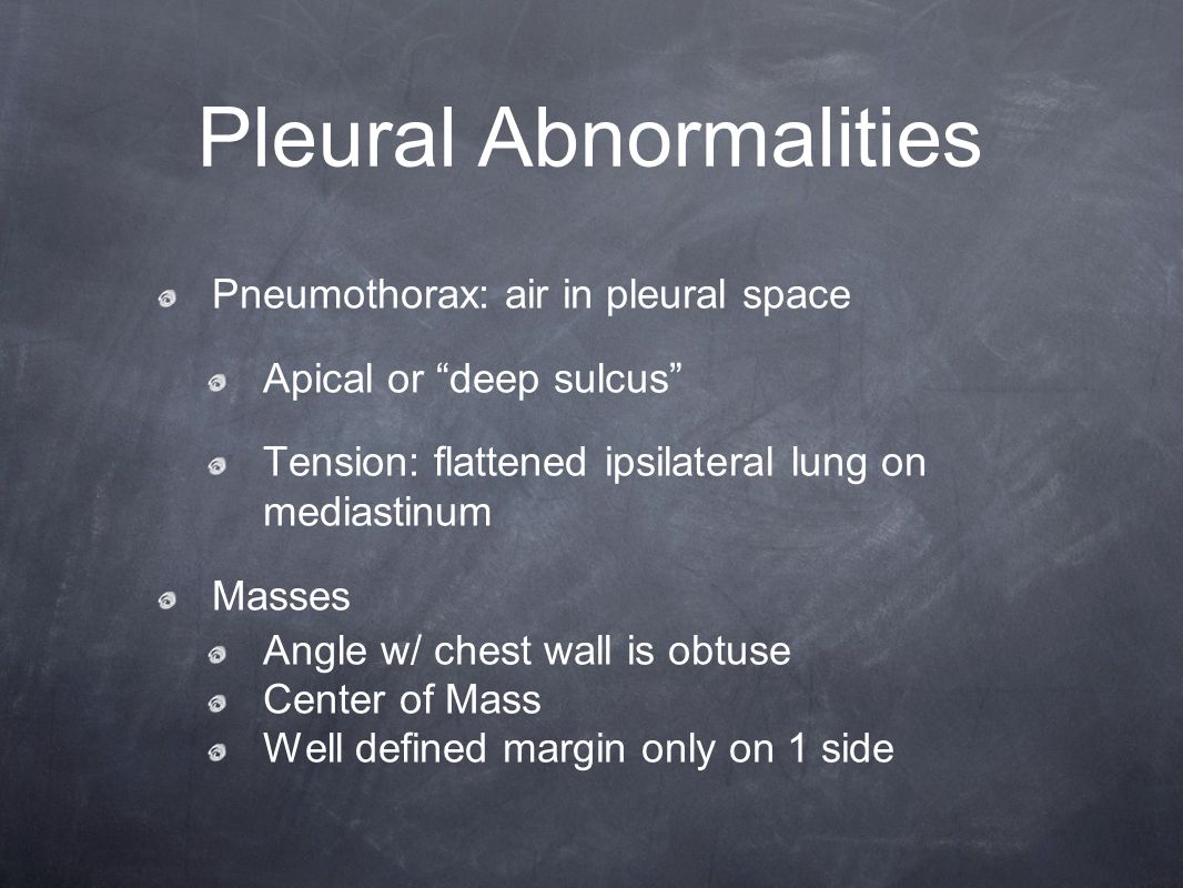 Pleural Abnormalities