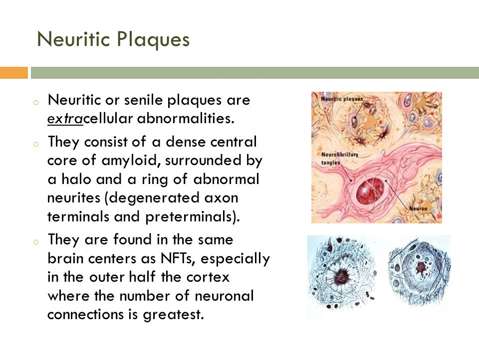 Neuritic Plaques Neuritic or senile plaques are extracellular abnormalities.