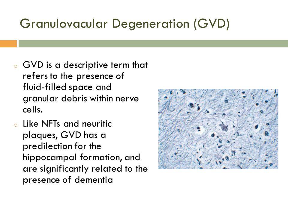 Granulovacular Degeneration (GVD)