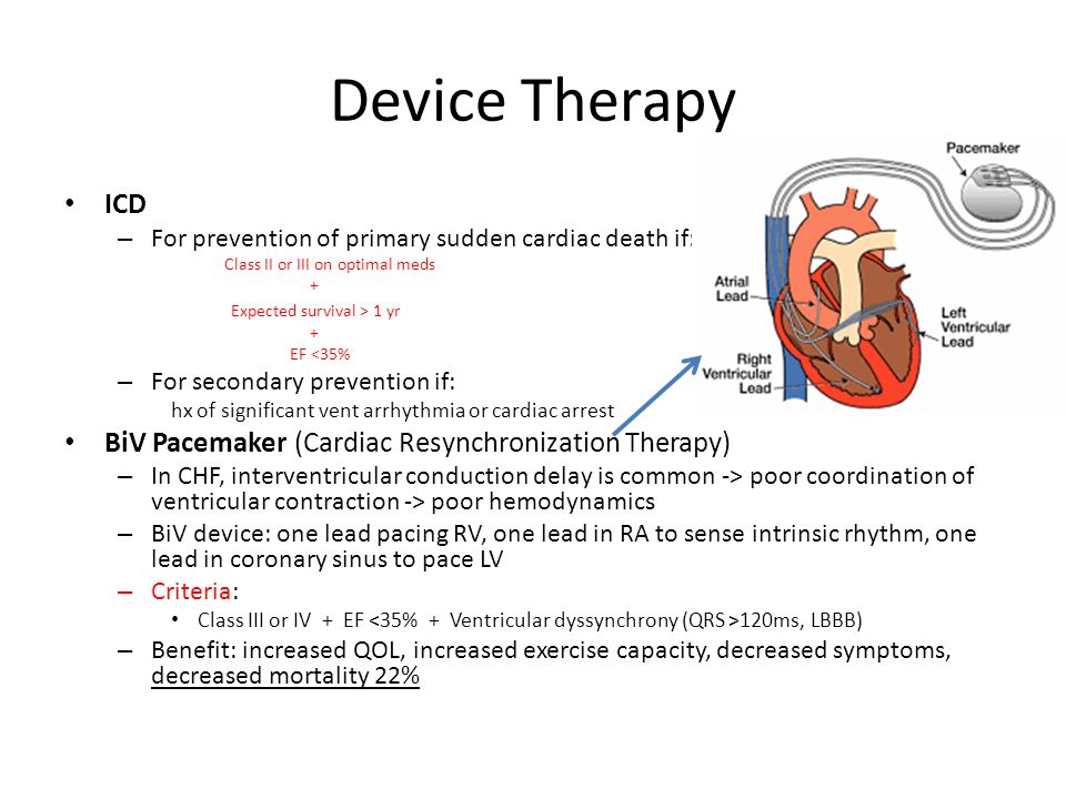 Device Therapy ICD BiV Pacemaker (Cardiac Resynchronization Therapy)