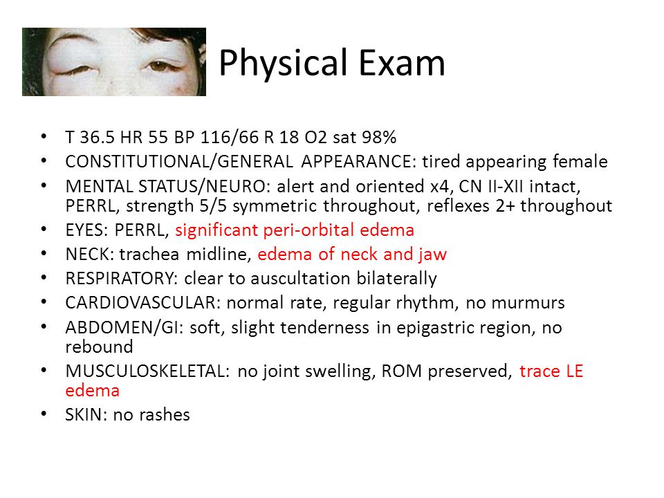 Physical Exam T 36.5 HR 55 BP 116/66 R 18 O2 sat 98%