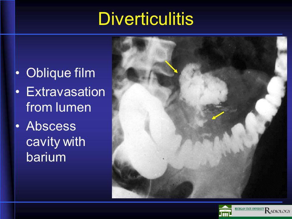 Diverticulitis Oblique film Extravasation from lumen