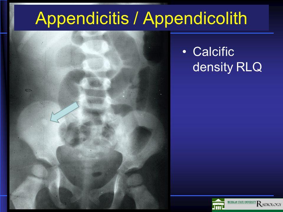 Appendicitis / Appendicolith