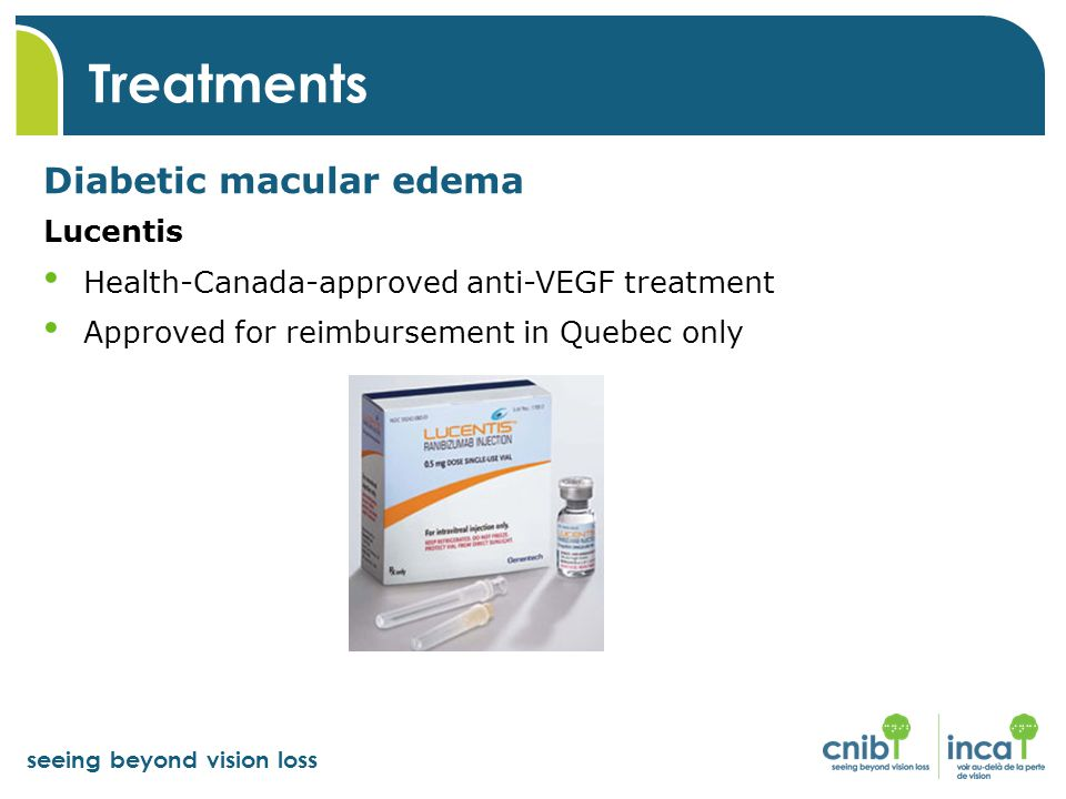 Treatments Diabetic macular edema Lucentis