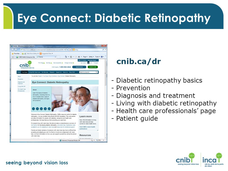 Eye Connect: Diabetic Retinopathy