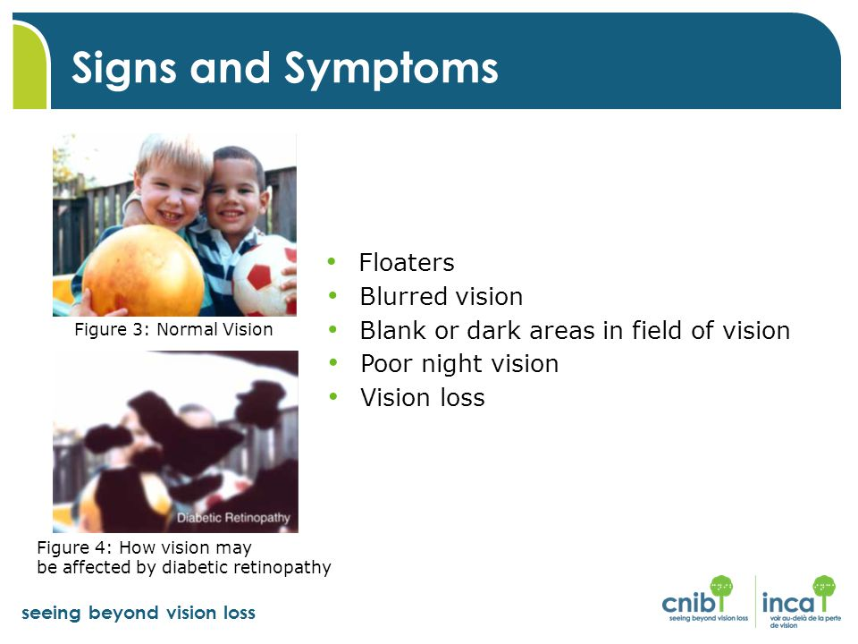 Signs and Symptoms Floaters Blurred vision
