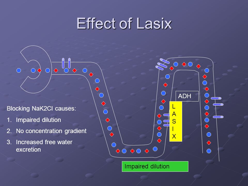 Effect of Lasix ADH LAS I X Blocking NaK2Cl causes: Impaired dilution