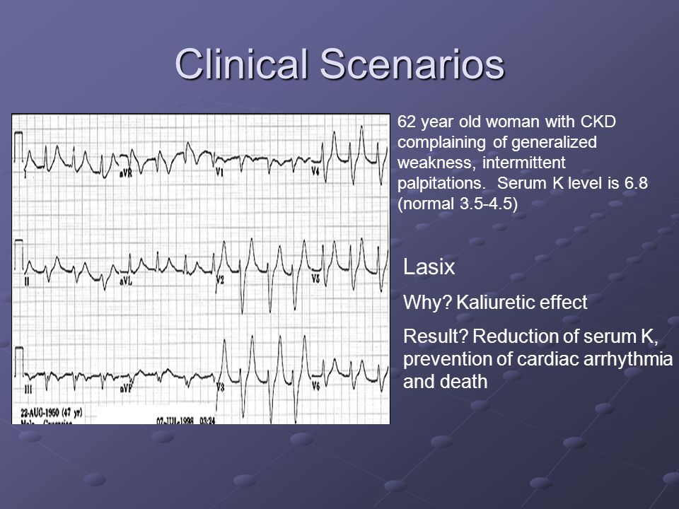 Clinical Scenarios Lasix Why Kaliuretic effect
