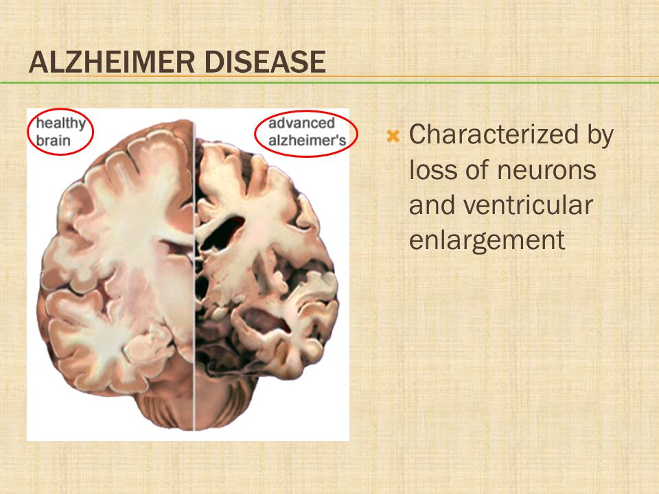 Alzheimer Disease Characterized by loss of neurons and ventricular enlargement