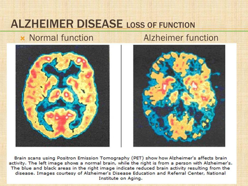 Alzheimer Disease Loss of function