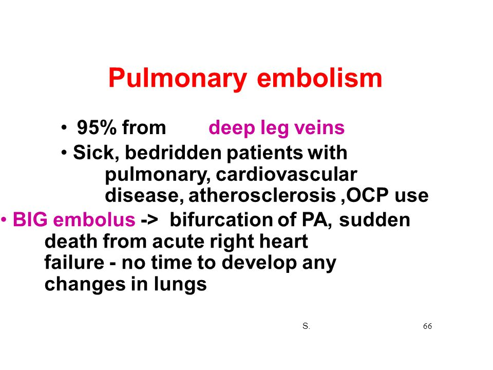 Pulmonary embolism • 95% from deep leg veins