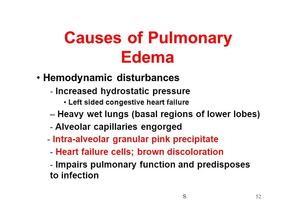 Causes of Pulmonary Edema