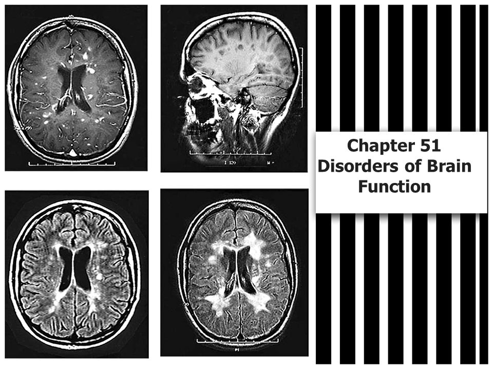 Chapter 51 Disorders of Brain Function