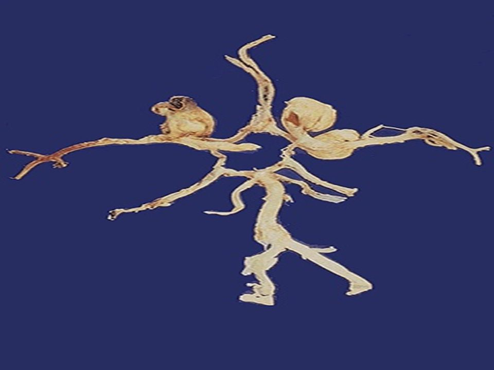 The circle of Willis has been dissected, and three berry aneurysms are seen.