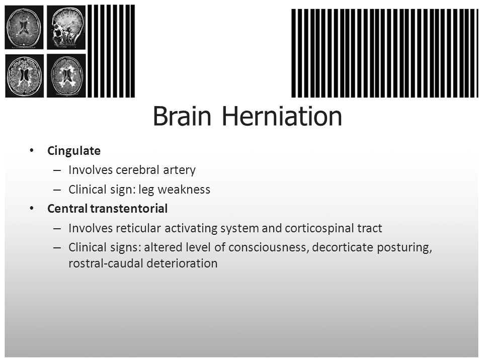 Brain Herniation Cingulate Involves cerebral artery