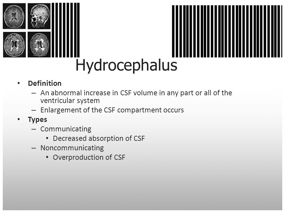 Hydrocephalus Definition