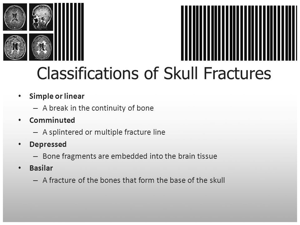 Classifications of Skull Fractures