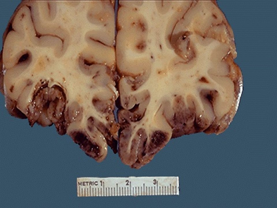 A coronal section through the frontal lobes reveals extensive contusions involving the inferior gyri.