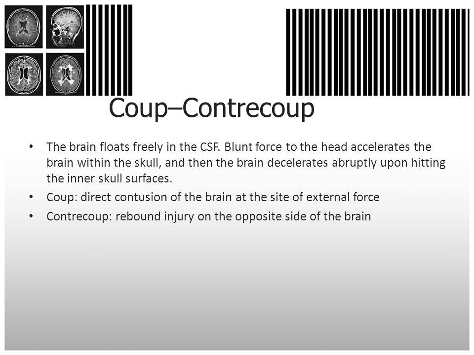 Coup–Contrecoup