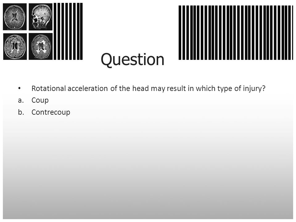 Question Rotational acceleration of the head may result in which type of injury Coup Contrecoup
