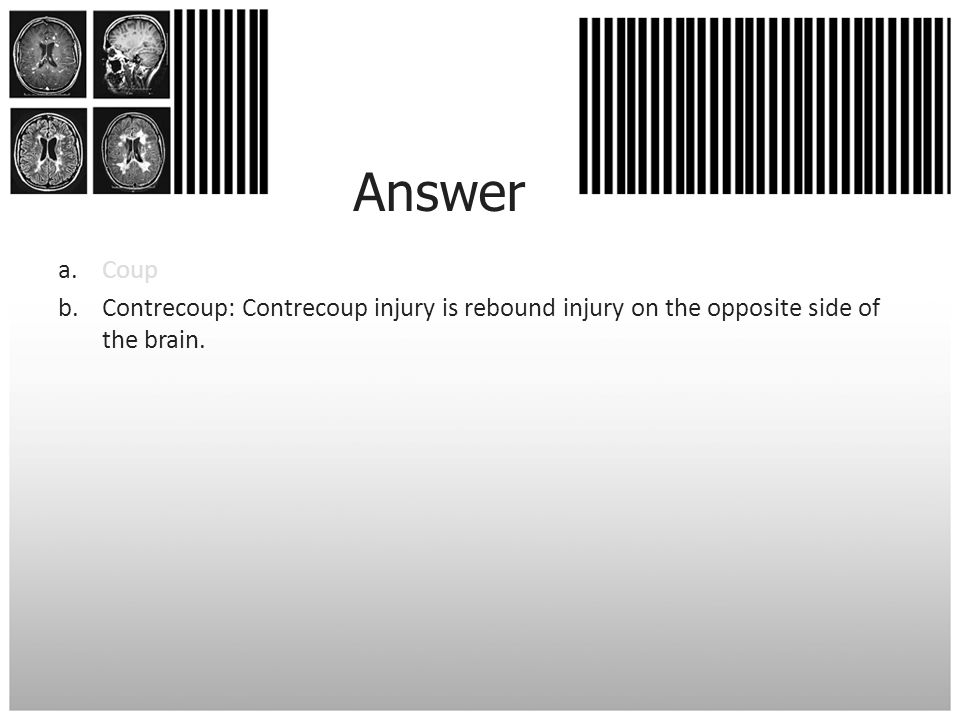 Answer Coup Contrecoup: Contrecoup injury is rebound injury on the opposite side of the brain.