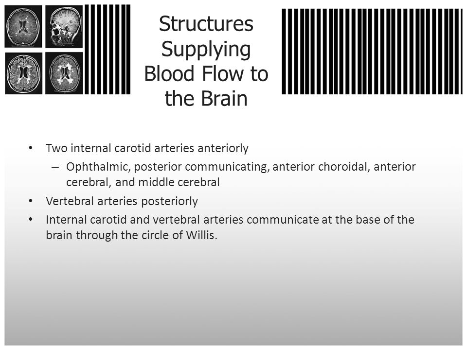 Structures Supplying Blood Flow to the Brain