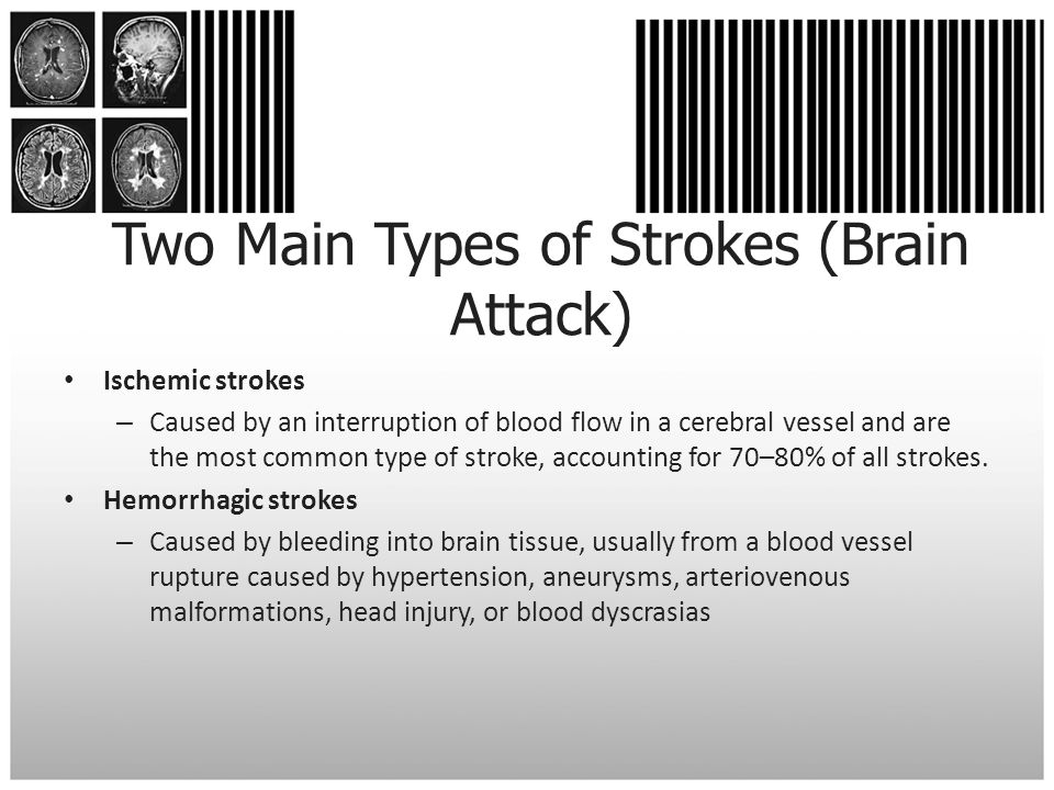 Two Main Types of Strokes (Brain Attack)