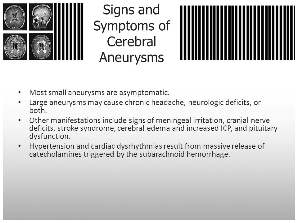 Signs and Symptoms of Cerebral Aneurysms